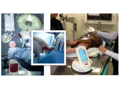 Platelet Therapy with Laser Therapy